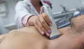 Echocardiogram Stress Test
